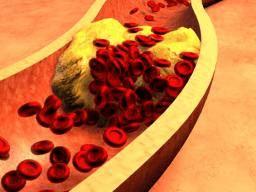 opstopping bloedvat in je lichaam